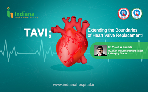 TAVI – A paradigm shift in the management of aortic valve stenosis