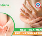 New Treatment of Rheumatoid Arthritis