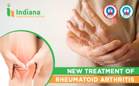 New Treatment of Rheumatoid Arthritis